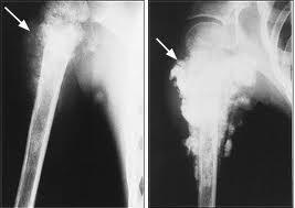 csontvelő rák kezelése hpv szemölcs vs pattanás
